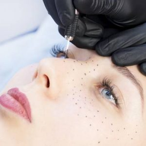 Cosmetic Freckles and Beauty Spots
